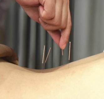 中医特色诊疗助力辅助生殖 提升
