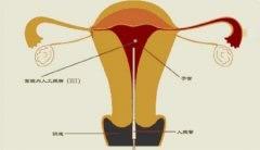输卵管堵塞做人工授精还是试管