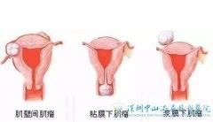 如果患子宫肌瘤可以做试管吗