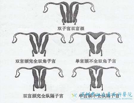 常見的幾種畸形子宮形態