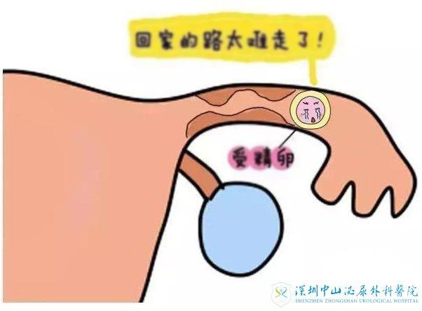 輸卵管積水做試管嬰兒移植妊娠率大大降低