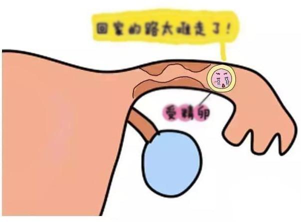 做输卵管通液好_输卵管积水对试管婴儿的影响及治疗解决办法-深圳中山泌尿外科 ...