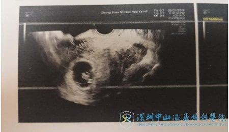 胚胎移植成功