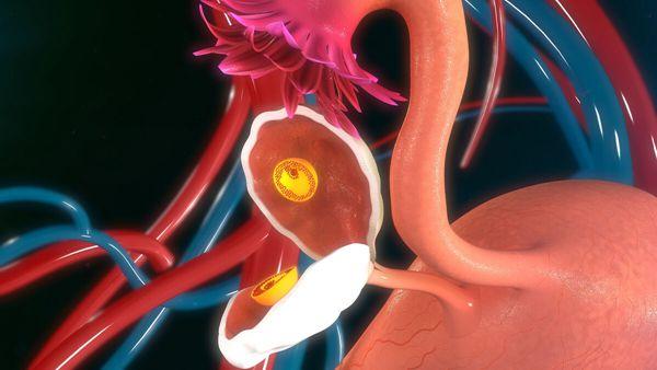 多囊卵巢试管婴儿一般几次成功